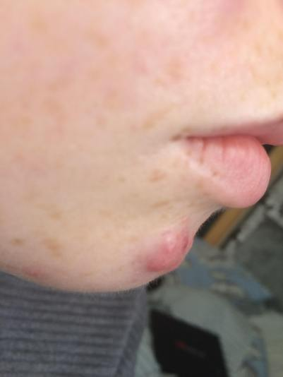 Example of Cycstic acne in 2016
